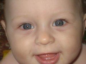 Первый зуб. Прорезывание зубов у детей