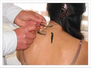 Гирудотерапия – лечение, проверенное временем