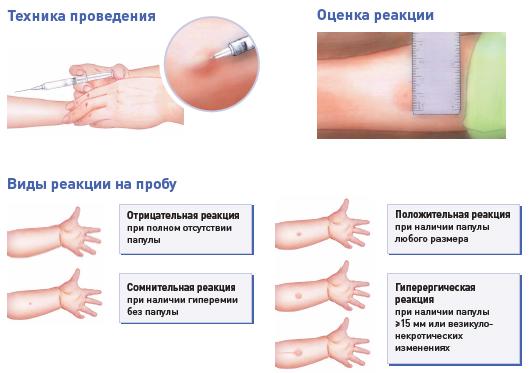 аллергия на манту симптомы фото