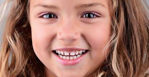 Сохранить зубы для лучшей жизни
